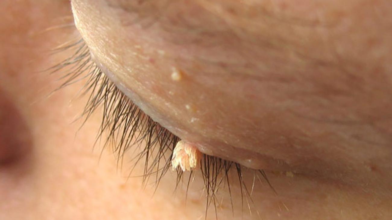 Operacije-virusnih-bradavica-i-fibroma_mob
